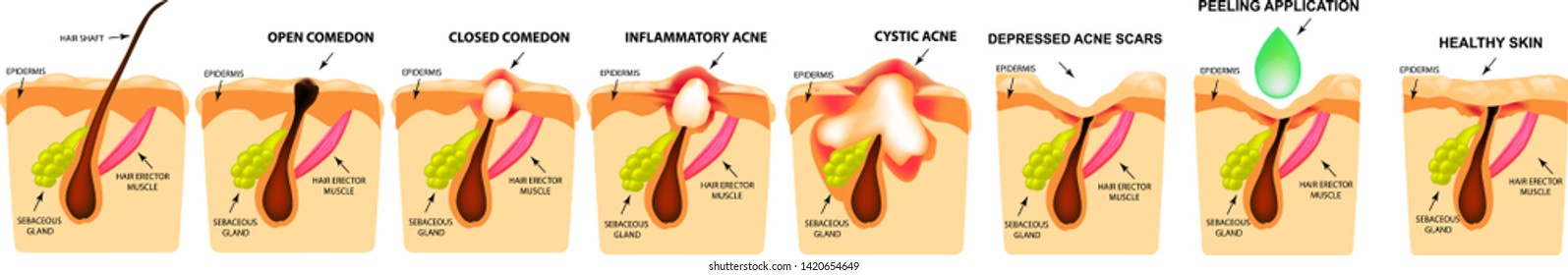 Treatment of open comedones, inflamed acne, acne cysts. Sore acne. The structure of the skin. Treatment of scars of acne and pimples. Peeling. Infographics. Vector illustration on isolated background.