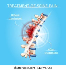 Treatment of Spine Pain Realistic Vector Poster or Chart with Damaged and Healthy Vertebral Column Before and After Medical Procedures Illustration. Human Body Joints Injuries Healing Medical Scheme