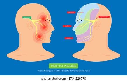 Trigeminal neuralgia chronic pain of facial TMD injury ophthalmic maxillary mandibular sensation central nervous system immune attacks myelin