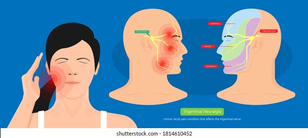 Trigeminal neuralgia chronic pain of facial TMD injury ophthalmic maxillary mandibular sensation central nervous system immune attacks myelin