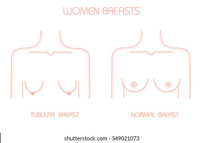 Tubular breast and Normal breast. Vector modern style.