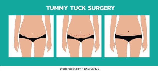 tummy tuck surgery or abdominoplasty