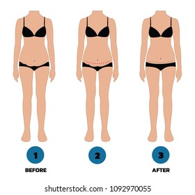 tummy tuck surgery or abdominoplasty before and after