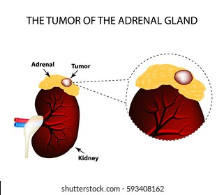 A tumor of the adrenal gland. Structure of the kidneys. Vector illustration on isolated background