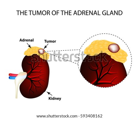 Tumor Adrenal Gland Structure Kidneys Vector Stock Vector Royalty
