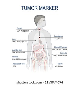 Tumor marker or biomarker. Cancer Development. Vector diagram forscience and medical use