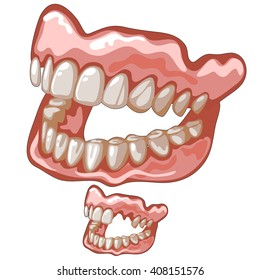 Two plastic dentures. Prosthetics. Vector illustration.