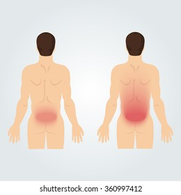 Two silhouettes of men from the back: increased back pain