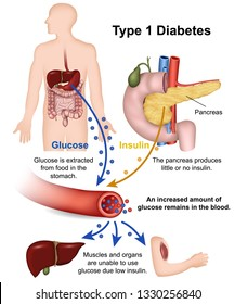 Type 1 diabetes medical vector illustration with english description