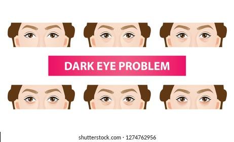 Type of dark circles under the eyes vector illustration