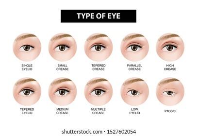 Type of eyelid crease vector illustration