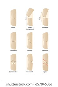 Type of fracture illustration vector on white background. Health concept.