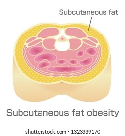 Type of obesity illustration . Abdominal sectional View (subcutaneous fat).