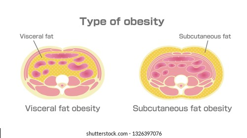 Type of obesity illustration. Abdominal sectional View. (visceral fat , subcutaneous fat)
