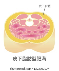 Type of obesity illustration (Japanese) . Abdominal sectional View (subcutaneous fat). translation: Subcutaneous fat (obesity).