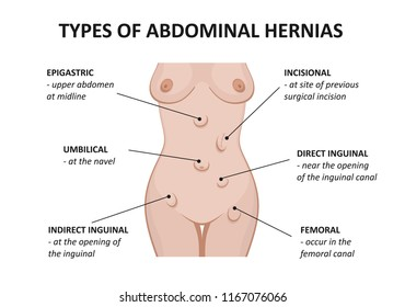 Types of abdominal hernias