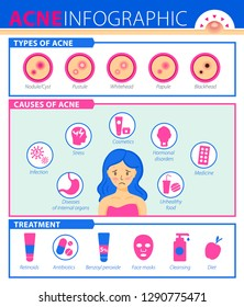 Types of acne, causes of the disease, treatment. Infographics of acne.
