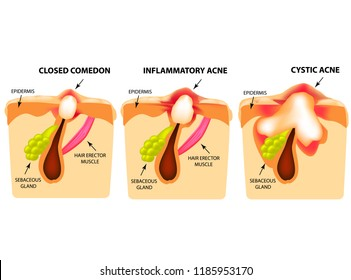Types of acne. Closed comedones, inflammatory acne, cystic acne. The structure of the skin. Infographics. Vector illustration on isolated background.