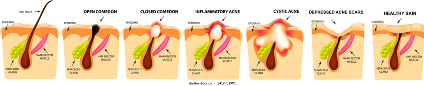 Types of acne. Closed comedones, open comedones, inflamed acne, cysts. Inflamed pimples. The structure of the skin. Scar acne and pimples. Infographics. Vector illustration on isolated background.