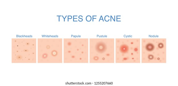 Types of Acne diagram for skin problems content. Illustration about medical and beauty.
