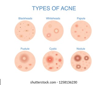 Types of Acne  icon for skin problems content. Illustration about dermatology diagram.