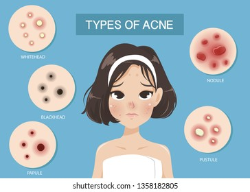 Types of acne occur on the face of the girl shot hair.