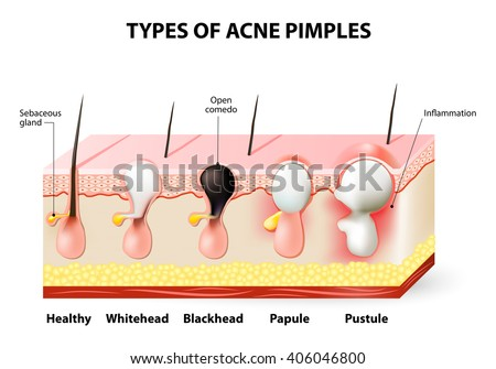 Types Acne Pimples Stock Vector Royalty Free 406046800 Shutterstock
