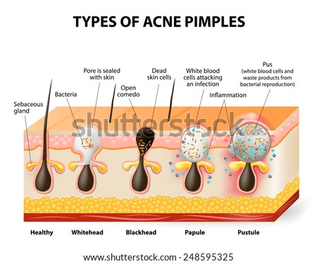types acne pimples healthy skin whiteheads stock vector (royaltytypes of acne pimples healthy skin, whiteheads and blackheads, papules and pustules