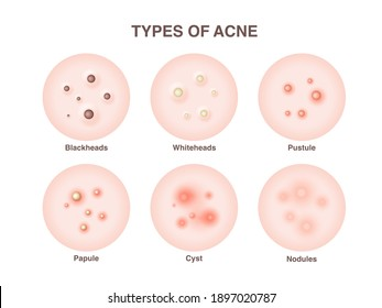 Types of acne, pimples, skin pores, blackhead, whitehead, scar, comedone. Vector icons of skin acne pimples, cosmetology and skincare problems.