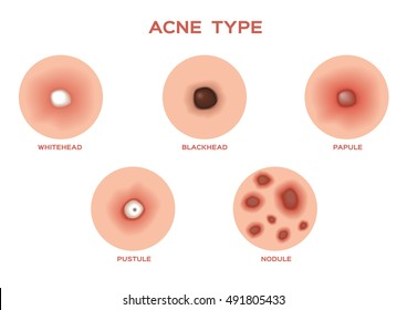 Types of Acne and Pimples, stages of development, vector illustration