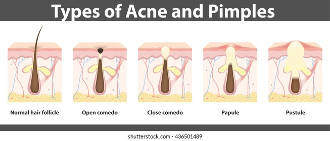Types of acne,  structure of  pimple, detailed drawing, vector illustration