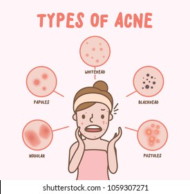 Types of acne with woman cartoon illustration vector on pink background. Beauty concept.