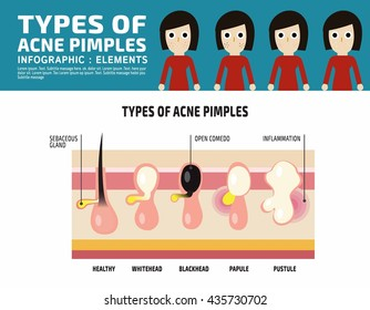 Types of Anatomy acne pimples Infographic elements.