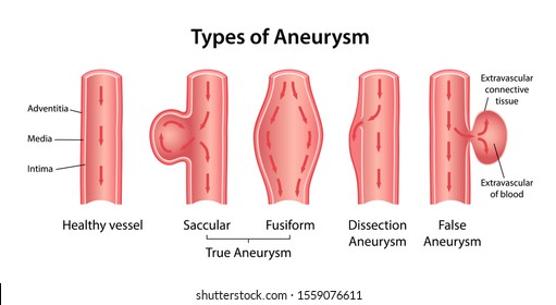 Types of aneurysm: True Aneurysm (Saccular, Fusiform), False Aneurysm and Dissection Aneurysm. Longitudinal section of blood vessels indicating blood flow. Vector illustration in flat style