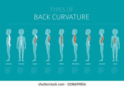 Types of back curvature. Medical desease infographic. Vector illustration