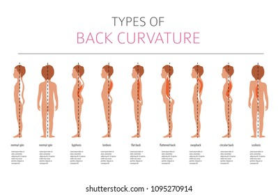 Lordosis Images, Stock Photos & Vectors | Shutterstock