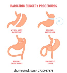 Types of bariatric surgery weight loss procedures- gastric bypass, sleeve gastrectomy, adjustable gastric band. Stomach reduction medical diagram infographic. Health care concept. Vector illustration.