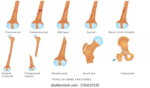Types of Bone Fractures. Different kinds of fractures. Descriptive illustration with examples of fractures of the femur bone on white background