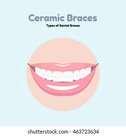 Types of Dental Braces. Vector flat illustration of smile with braces on the teeth.