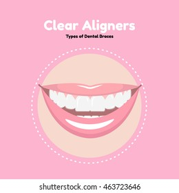 Types of Dental Braces. Vector flat illustration of smile with aligners on the teeth.