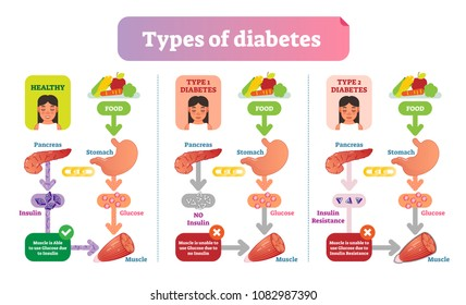 Types of Diabetes simple medical vector illustration scheme. Health care information diagram with Type 1 and Type 2 diabetes.