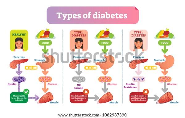 diagramas de diabetes tipo 1 y tipo 2