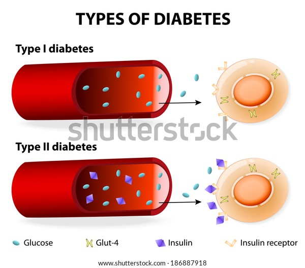 resistencia a la insulina y diabetes mellitus tipo 2