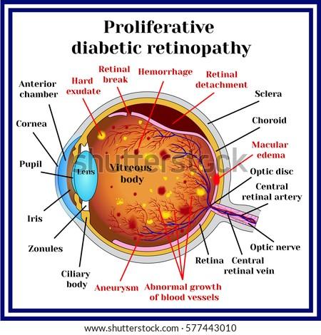 Resultado de imagen de diabetic retinopathy proliferative