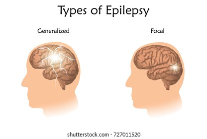 Types of epilepsy. Vector medical illustration. Generalized, focal seizures. White background, silhouette of man head, anatomy image of brain, electrical discharge.
