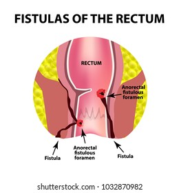 Types of fistulas of the rectum. Paraproctitis. Anus. Abscess of the rectum. Infographics. Vector illustration on isolated background