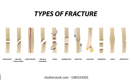 Types of fracture. Fracture bone set. Infographics. Vector illustration on isolated background.