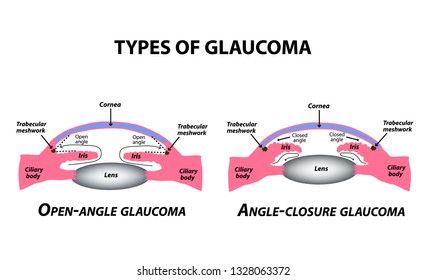 Types of glaucoma. Open-angle and angle-closure glaucoma. The anatomical structure of the eye. Infographics. Vector illustration on isolated background.