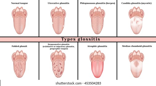 Types glossitis: candidiasis (mycotic), ulcerative, abscess (herpes), desquamative (exfoliative or migratory glossitis, geographic tongue), atrophic, median rhomboid glossitis, folded glossitis.