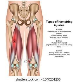 types of hamstring injurys 3d medical vector illustration on white background